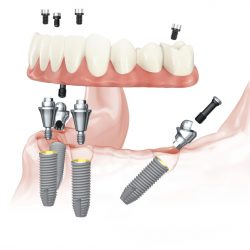 All-on-4 Mandible NobelParallel