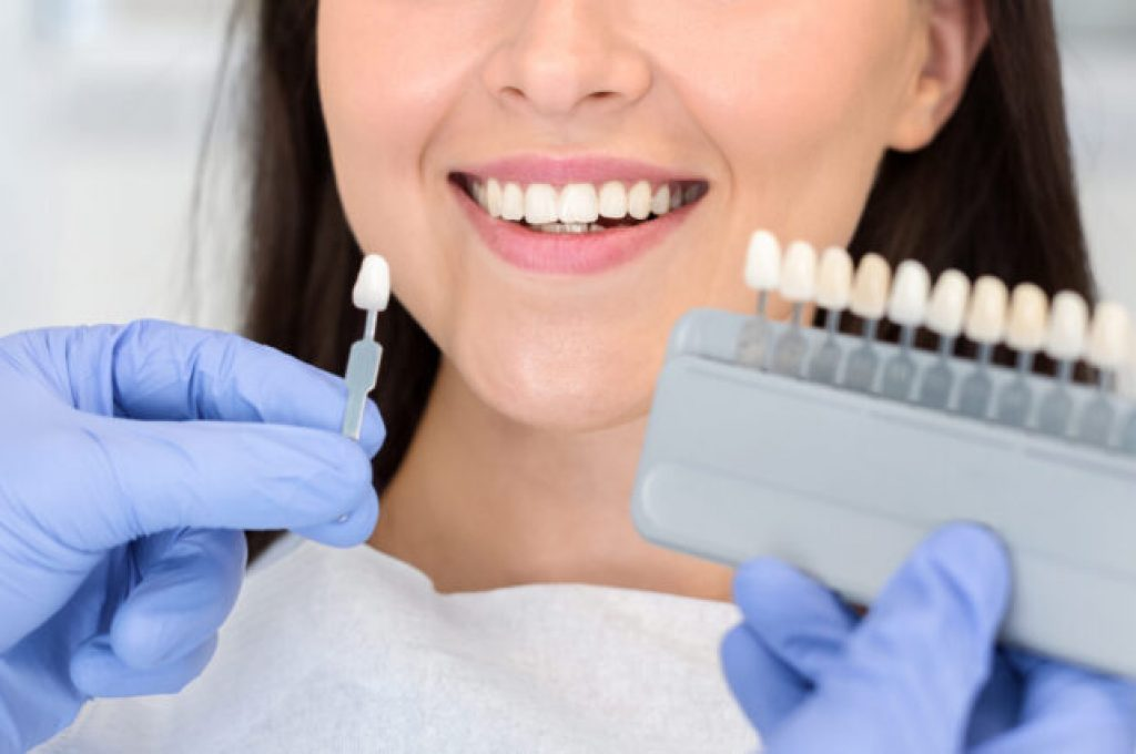 Dentist in blue medical gloves applying sample from tooth enamel scale to happy woman patient teeth to pick up right shade, teeth bleaching procedure, cropped, panorama